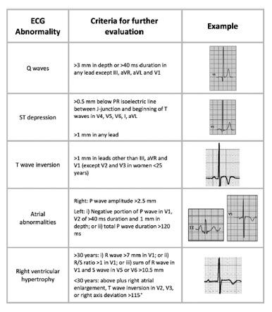 Exame ecg
