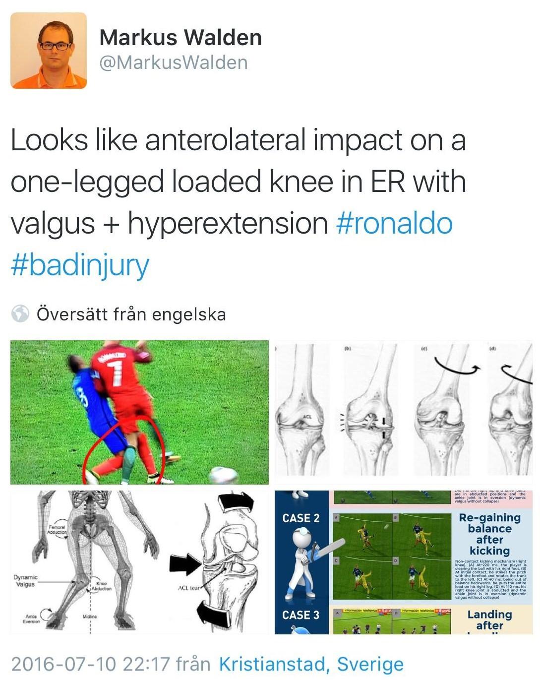 knee tweet 2