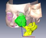 3D_facial_reconstruction