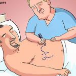 EC-patient-pay