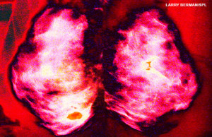 Mammogram. Coloured mammogram (breast X-ray) showing a malignant (cancerous) tumour (patchy area) in the patient's breast. Breast cancer is the most common type of cancer in women. The cancer can invade surrounding tissue and spread to other parts of the body (metastasis). Treatment is with removal of the tumour, or complete removal of the breast. Surgery is often combined with radiation therapy and chemotherapy.