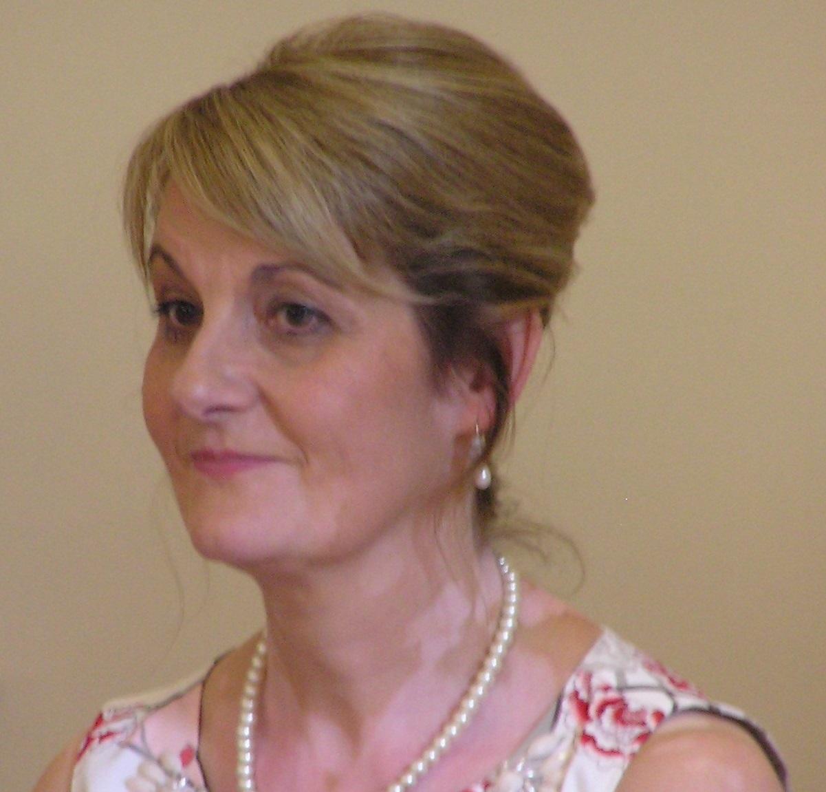 Helen Tuckwood Living With Vitiligo The Bmj