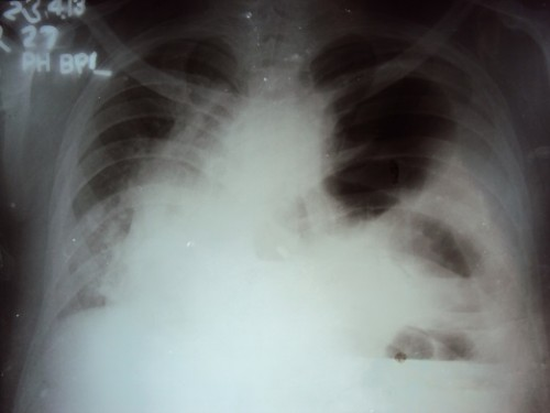Chest_X_Ray