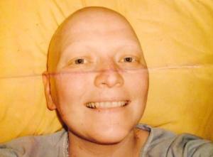 Noirin O'Neill - chemotherapy