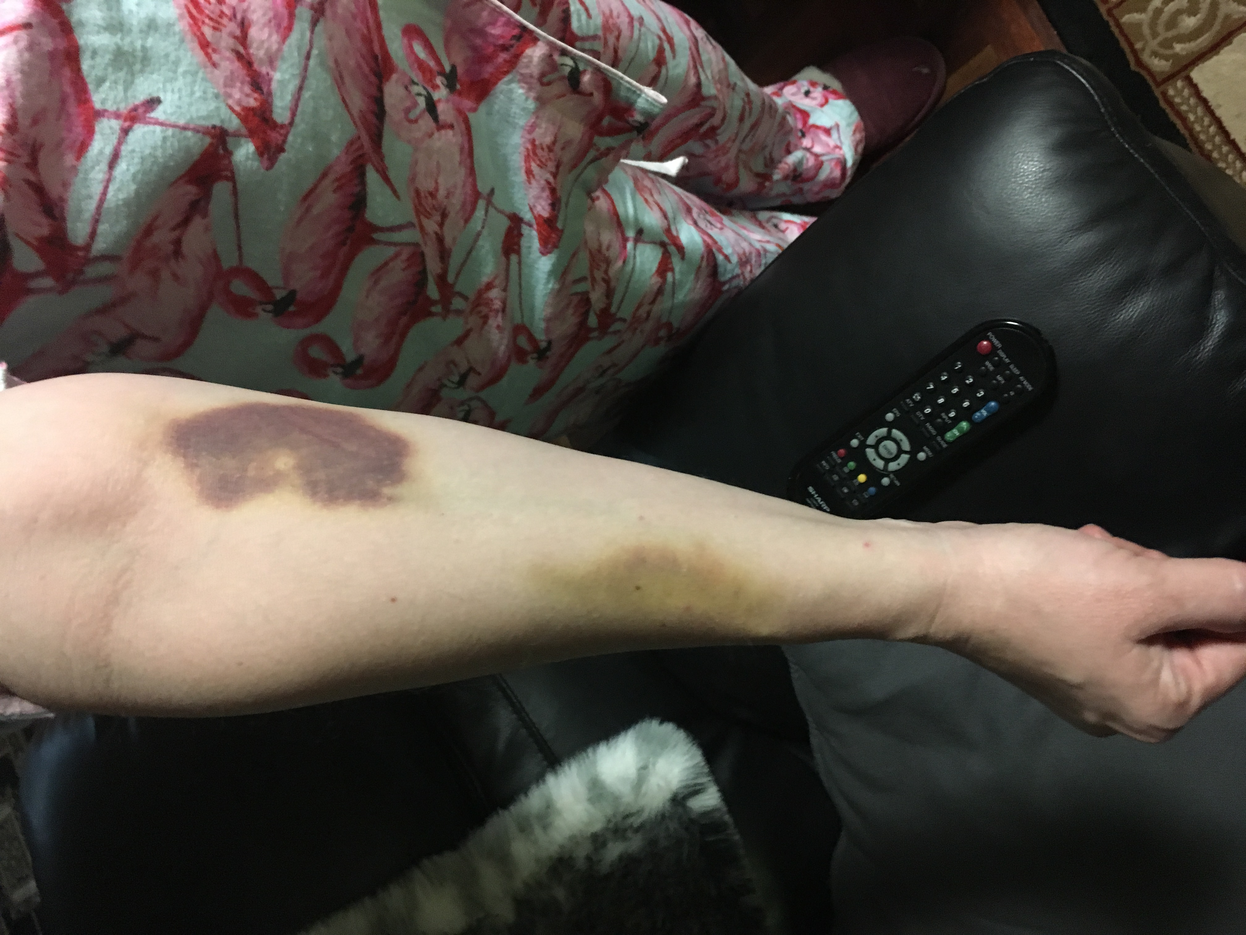 The result of two collapsed veins during IV insertion, 10 days later