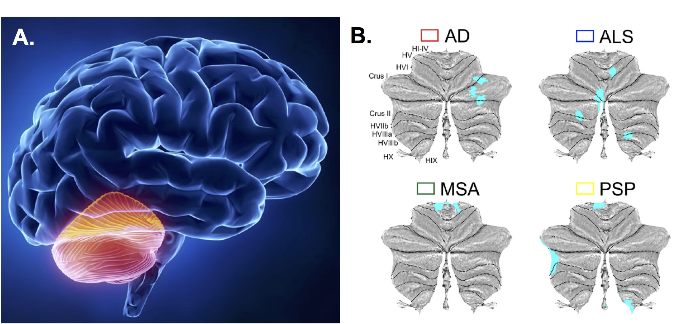 Ad Brain Diagram Content Resource Of Wiring Easy The Cerebellum In Neurodegeneration More Than Just Balance Control Rh Blogs Bmj Com Labeled With Functions