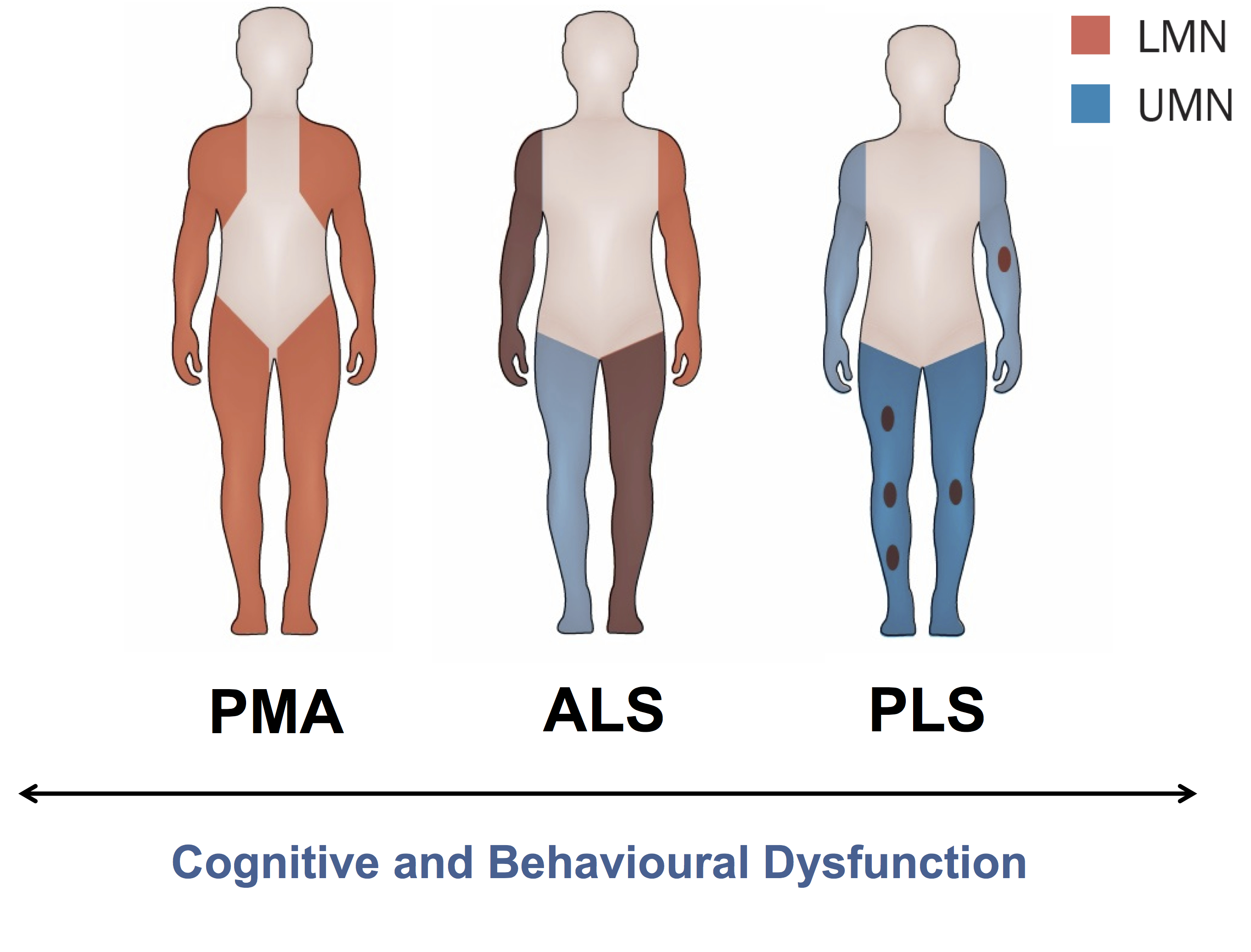 Primary lateral sclerosis and progressive muscular atrophy as a ...