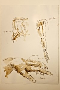Figure.1_Hand.Shoulder_BMJ