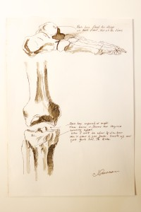 Figure.2_Knee.Foot_BMJ