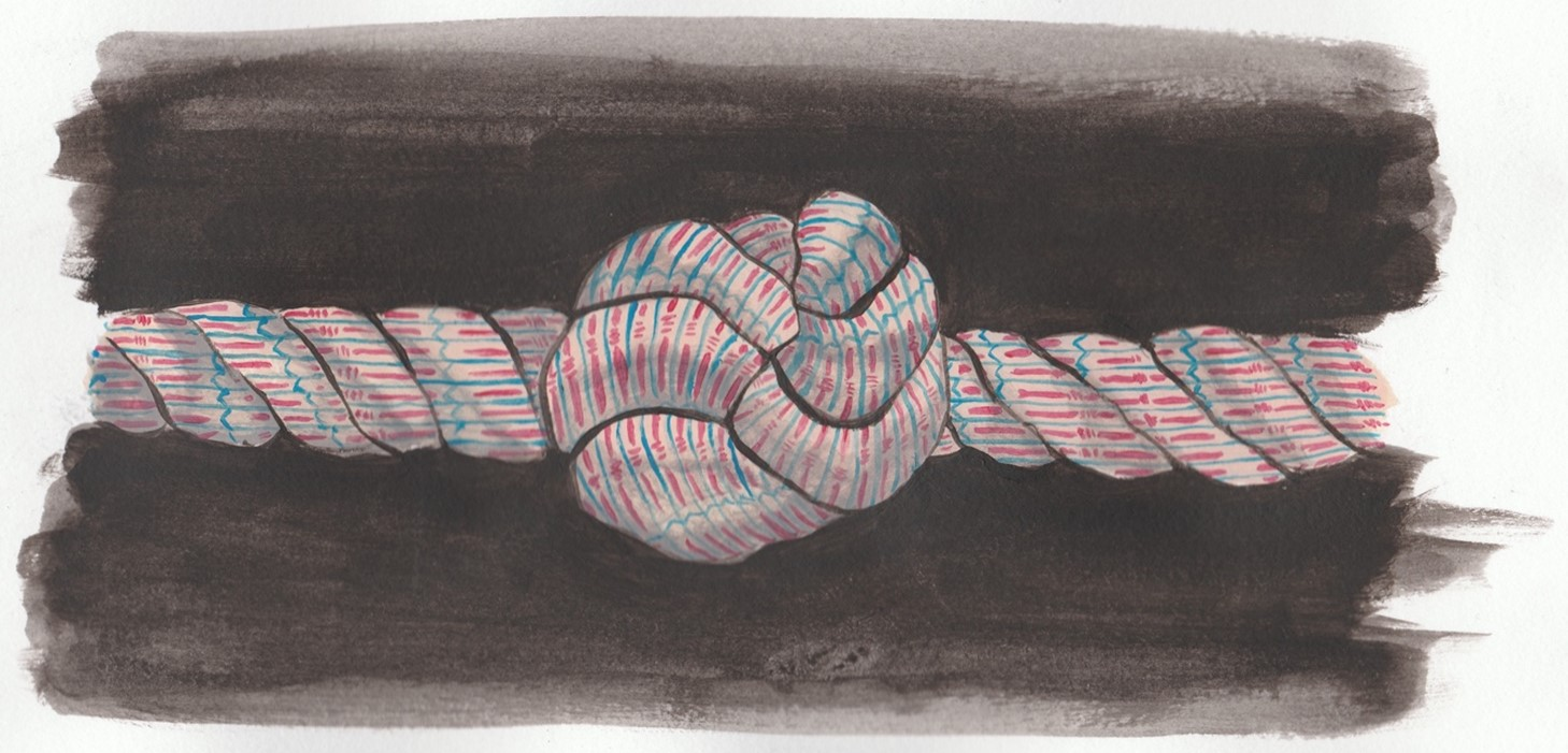 Metaphorical muscle knot.